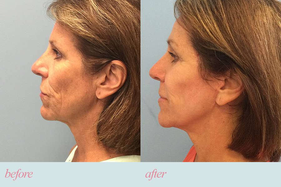 How the natural aging process affects facial skin and muscle tone
