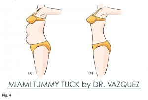 An example of the Miami tummy tuck results