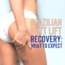Brazilian butt lift: What to expect